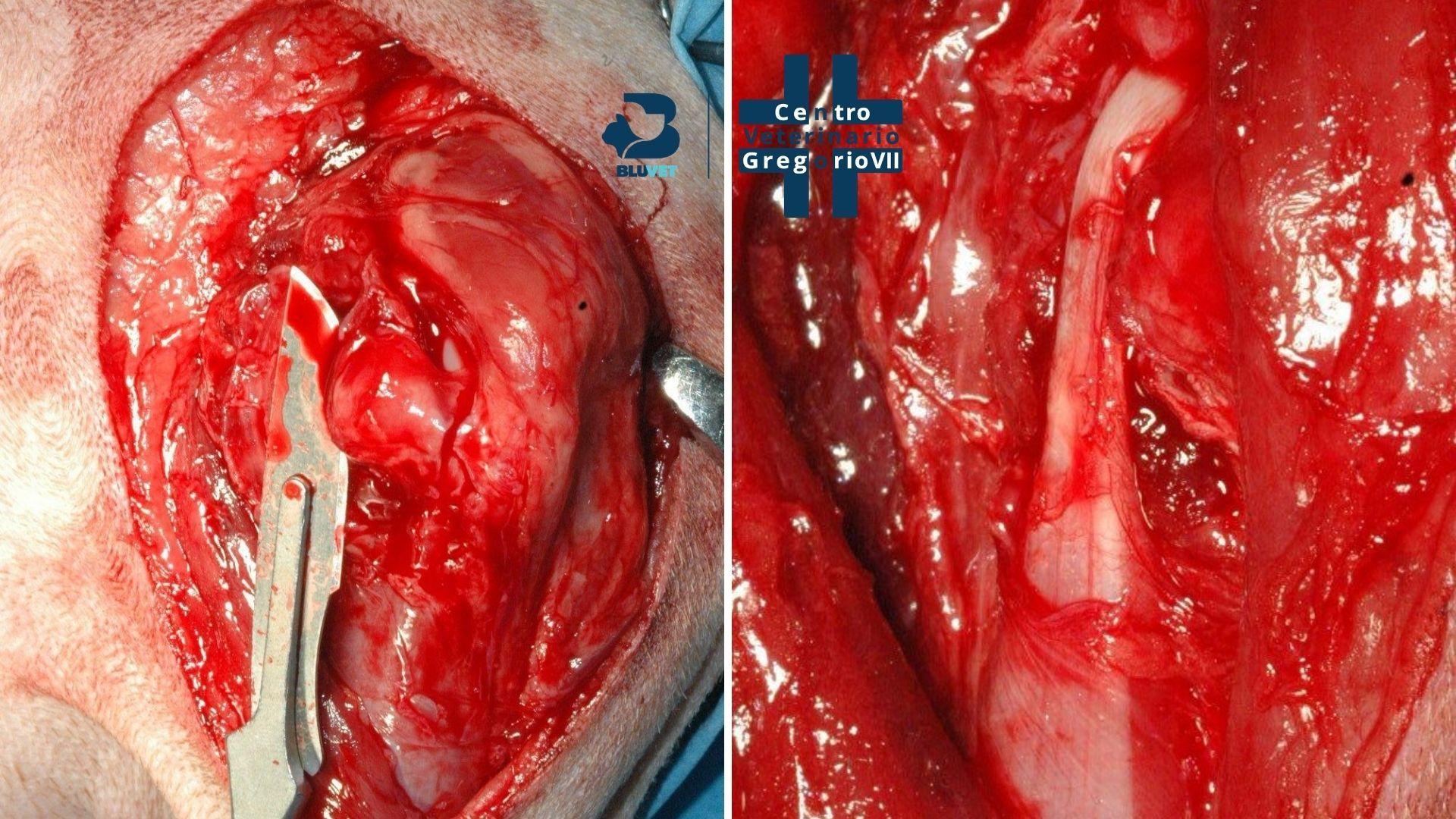 lussazione di spalla intervento chirurgico prima fase