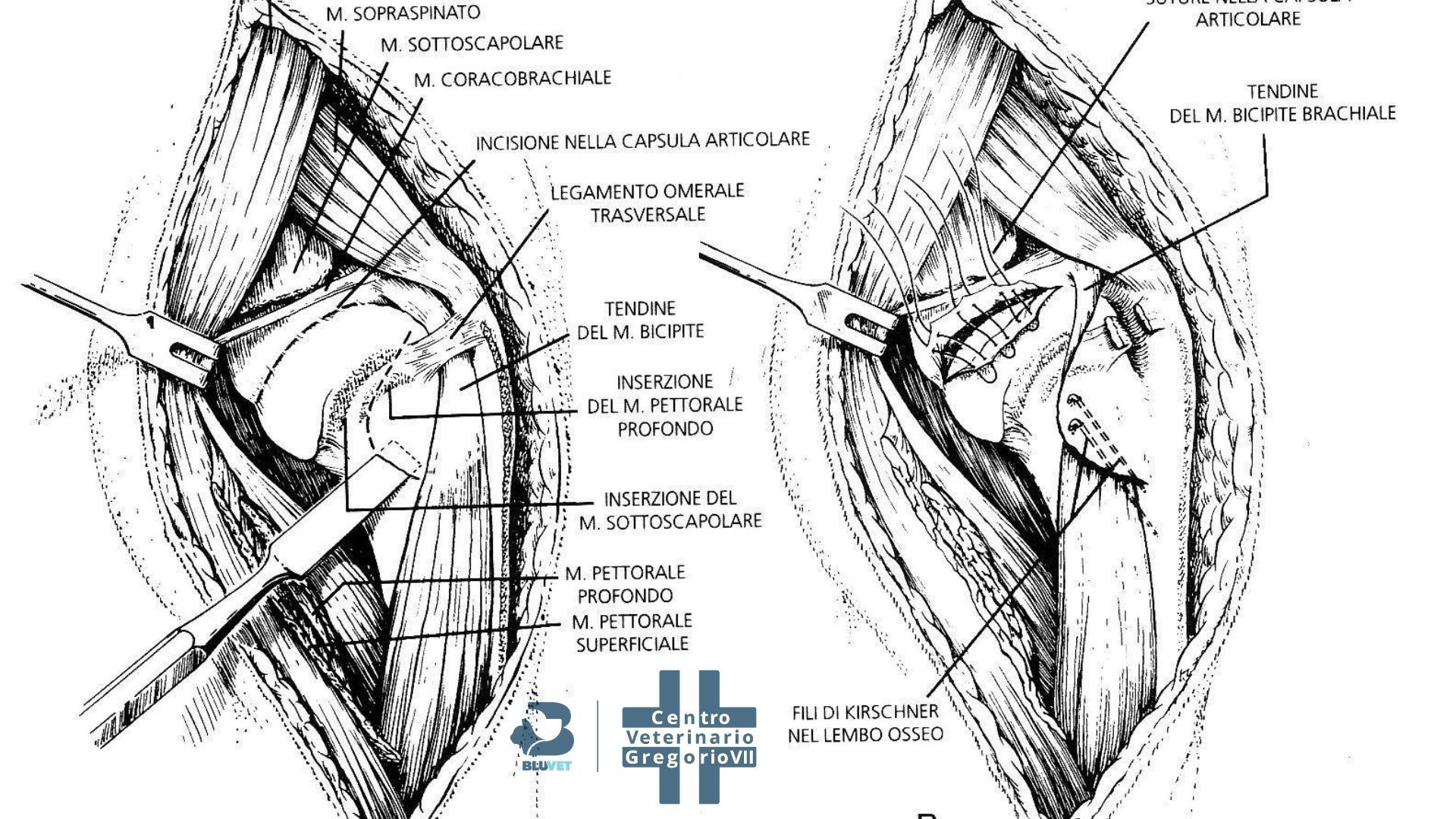 lussazione di spalla lastra schema intervento